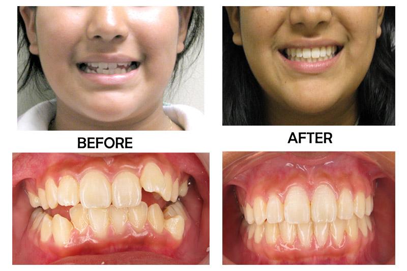 Teen Orthodontics - Bellflower Dentist Orthodontics and Sleep Apnea