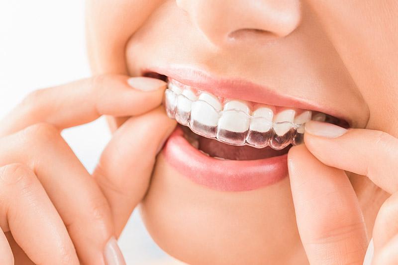 Invisalign - Bellflower Dentist Orthodontics and Sleep Apnea
