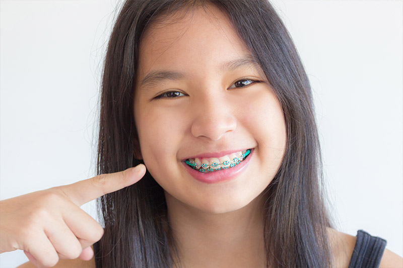 Type of Braces - Bellflower Dentist Orthodontics and Sleep Apnea